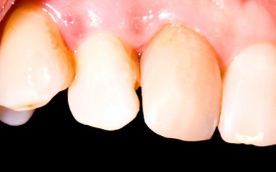 Tooth Restoration After